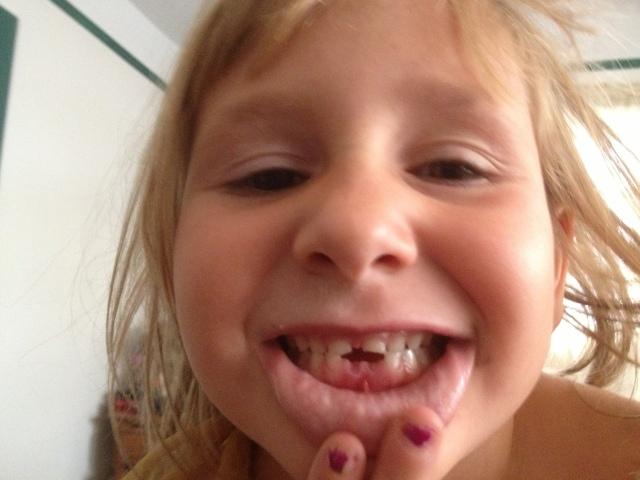 Amelia's new smile